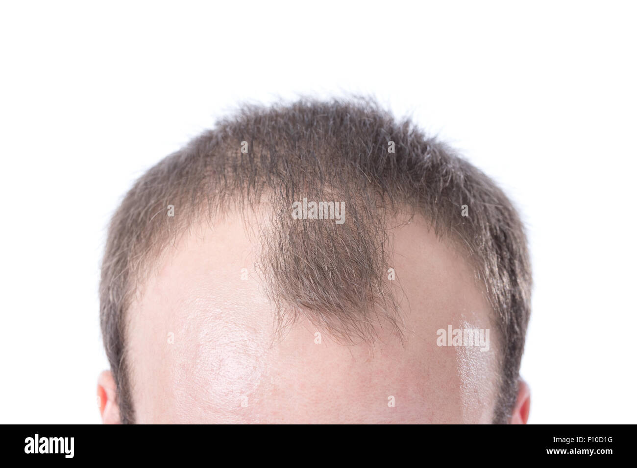 A White Male With Brown Hairu0027s Receding Hairline On A White Background.    Stock Image