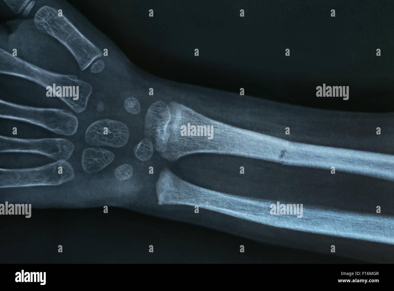 Close up of a brokan hand Xray - Stock Image
