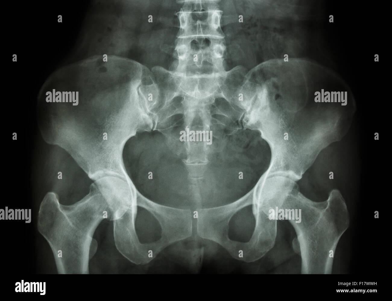 Film X-ray of Pelvis - Stock Image