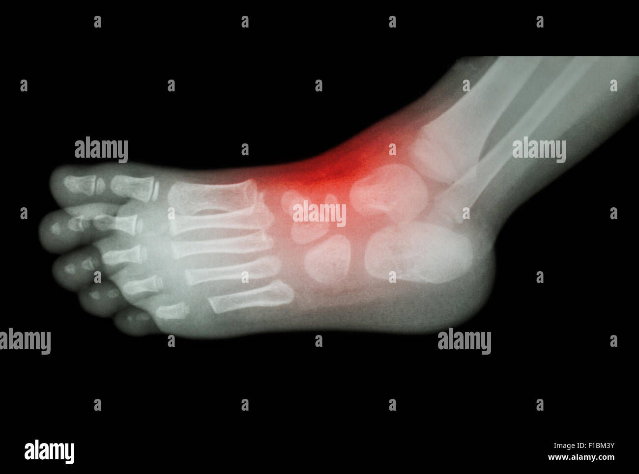 Medical X Ray Lateral Ankle Stock Photos & Medical X Ray Lateral ...