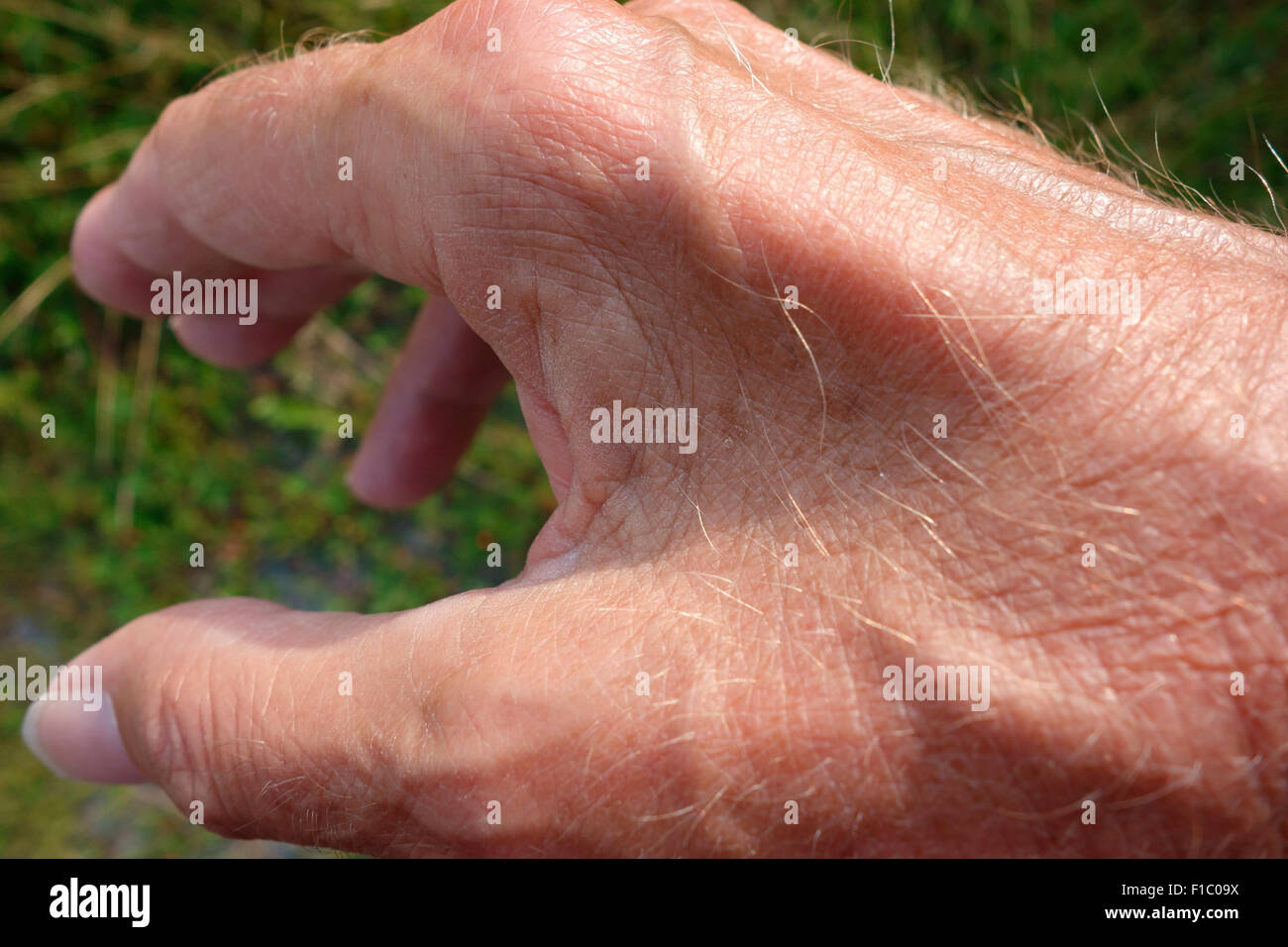 Muscle wasting and atrophy between the thumb and forefinger of the hand due to Ulnar neuropathy this being a major - Stock Image