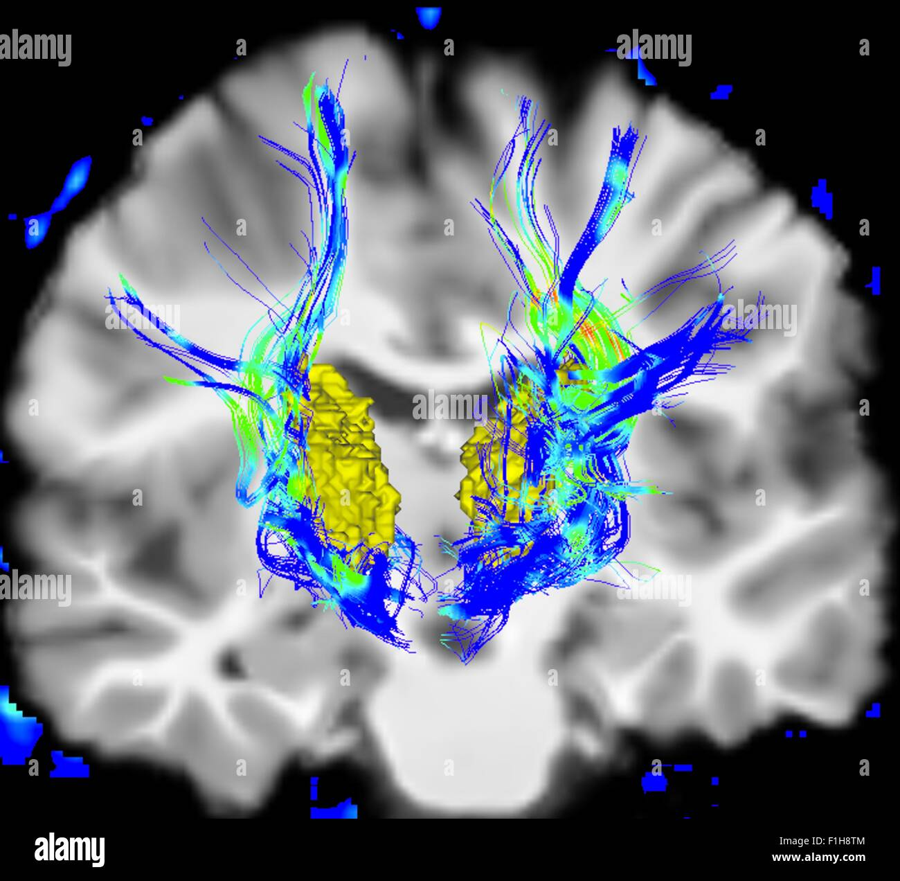 Coronal view human brain Parkinson's disease. Yellow surface is thalamus blue/green areas highlight fibers motor - Stock Image