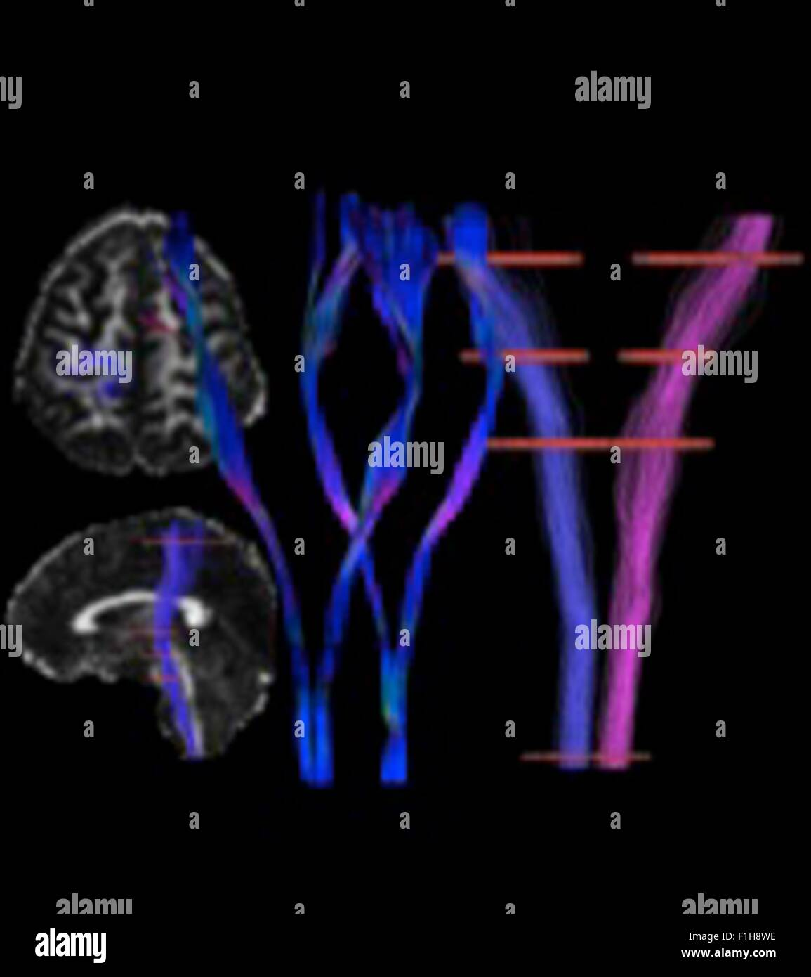 The cortical spinal tract, the motor tract, left and right, in a human subject - Stock Image