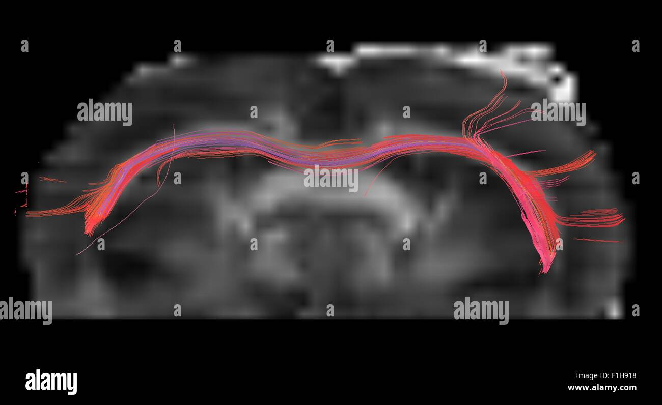 The corpus callosum of a rat brain, in axial plane - Stock Image