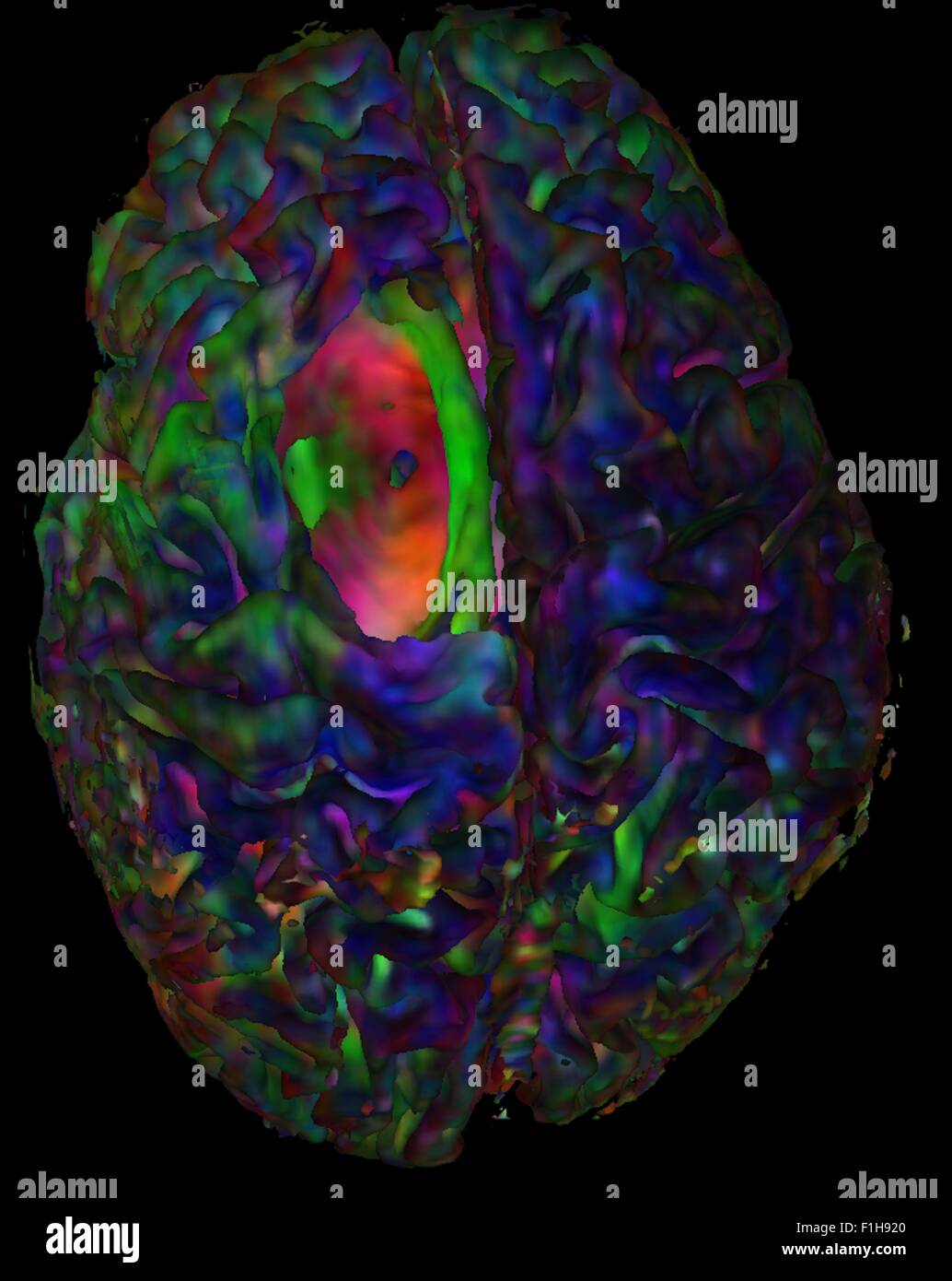 Top view cortical mesh colored diffusion orientation Red-Green-Blue tumor cavity showing hole - Stock Image