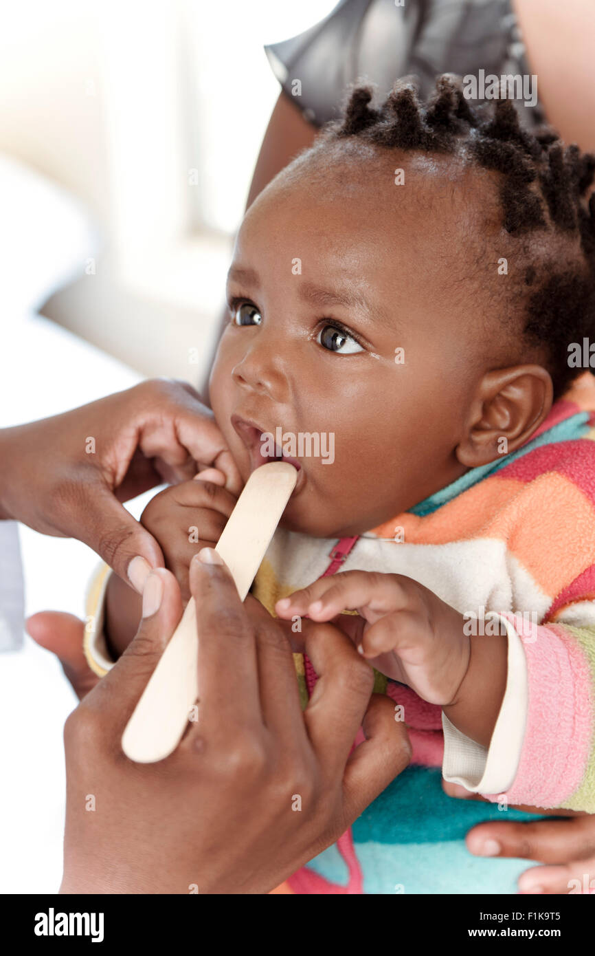 Closeup of a baby African girl with a tongue depressor in her mouth - Stock Image