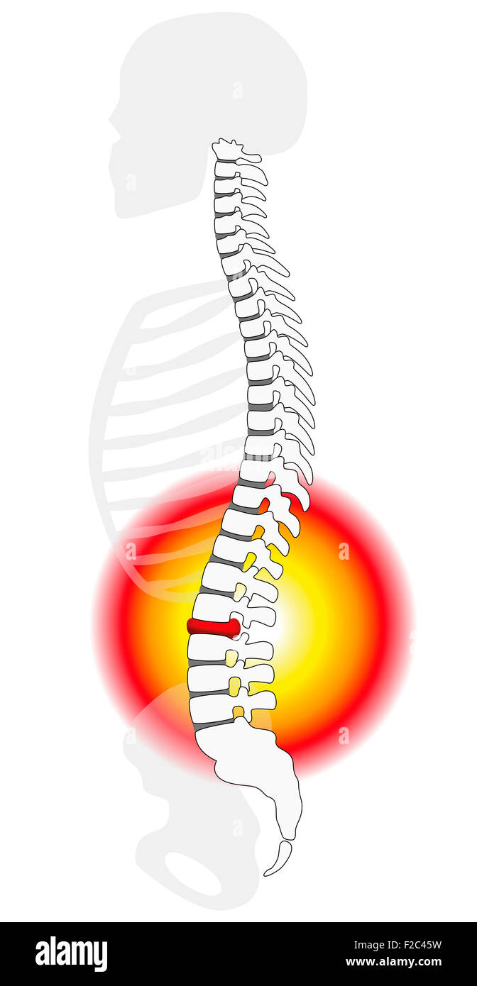 Spinal disc herniation or prolapse at a human vertebral column - profile view. - Stock Image