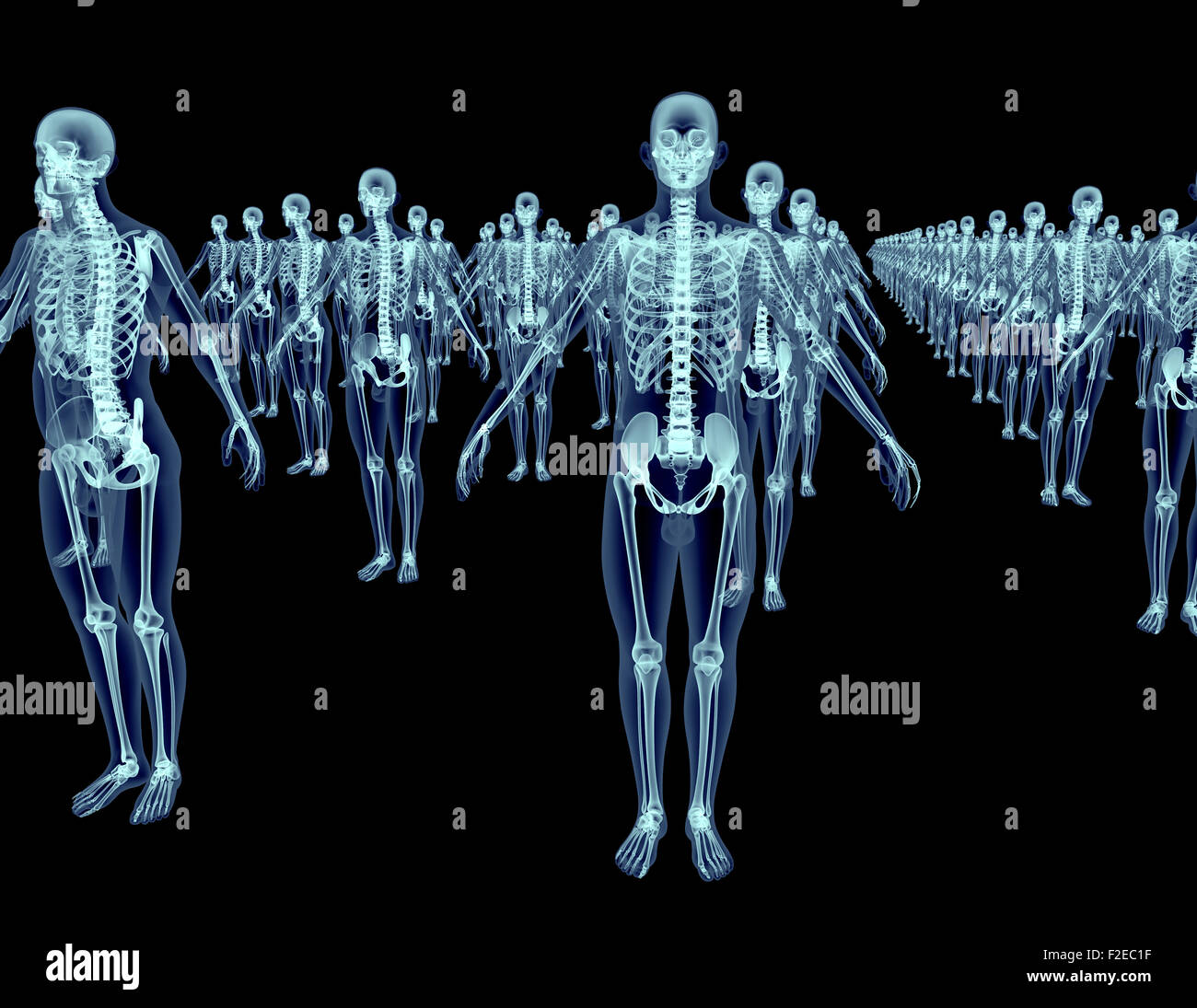 lot of xray skeletons isolated on black - Stock Image