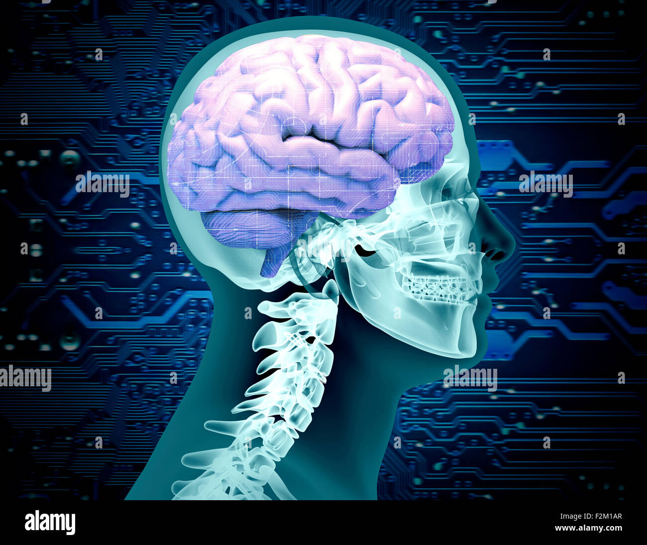 x-ray image of a scull with a brain and circuit board chip. - Stock Image