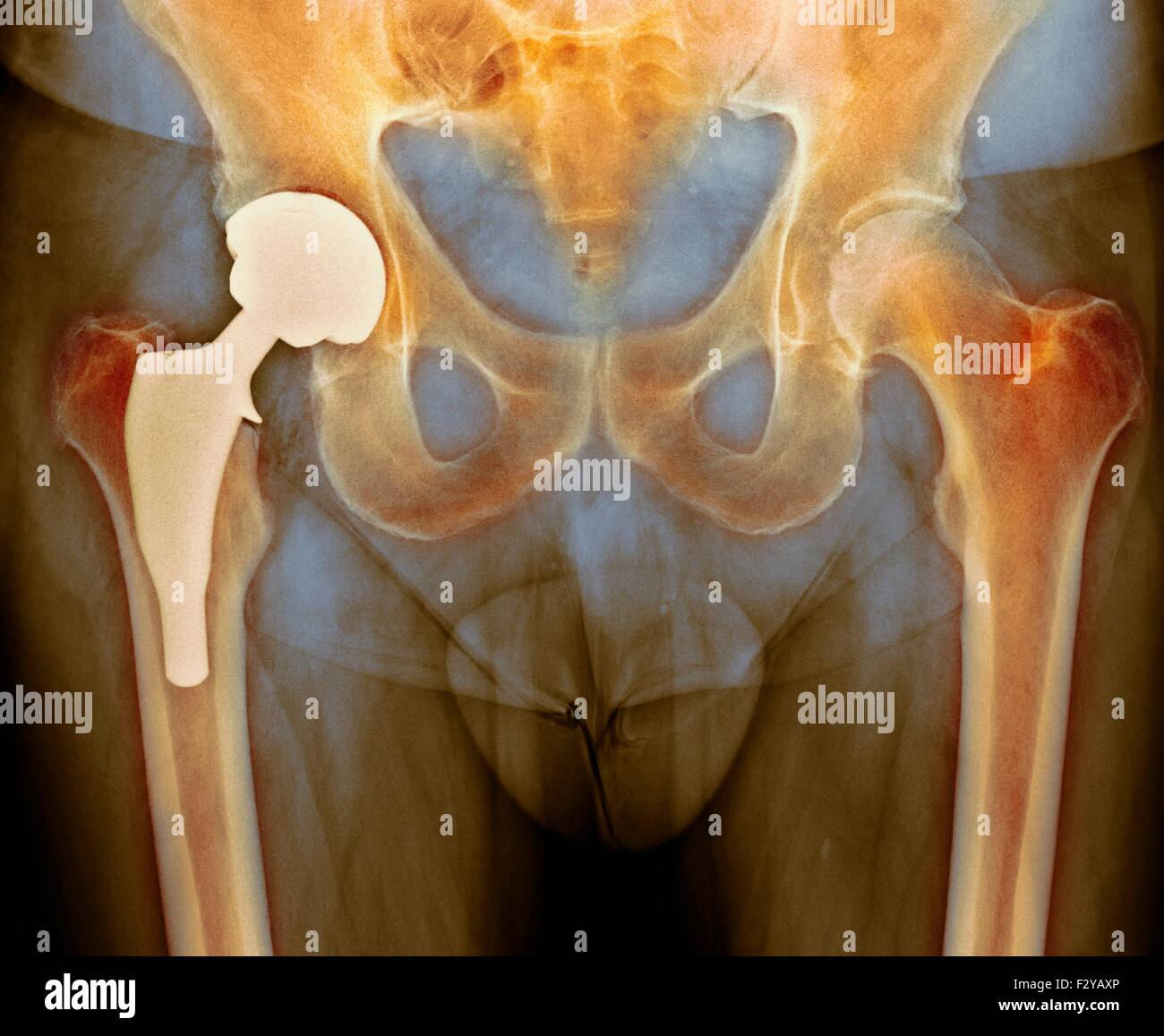 Total Hip Replacement Coloured X Ray Of A Section Through The