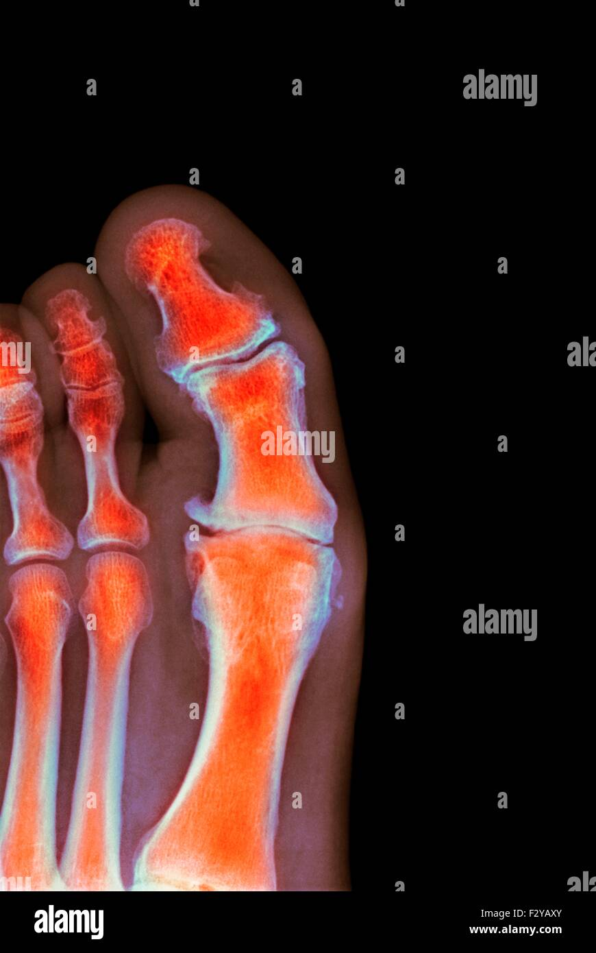 Foot Xray Stock Photos Foot Xray Stock Images Alamy