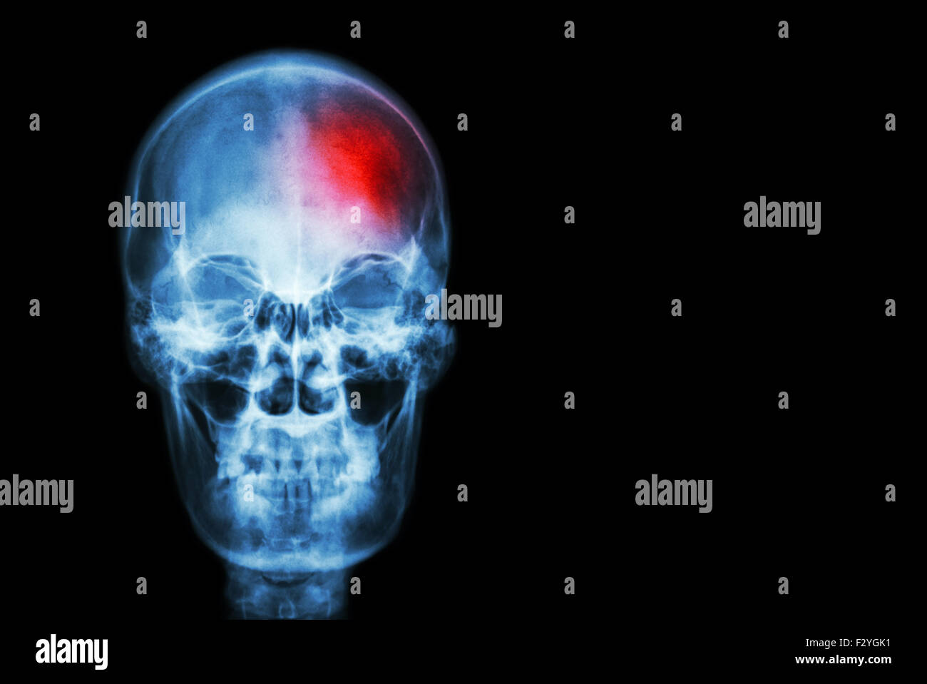 stroke cerebrovascular accident film x ray skull of human with red area medical science and healthcare concept and bac