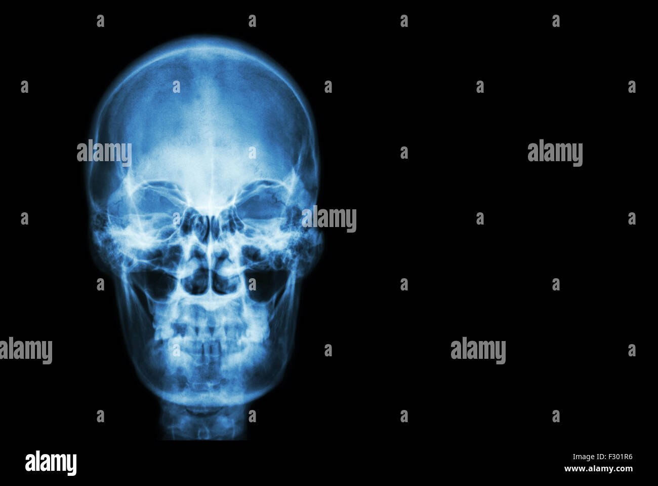 film x-ray skull of human and blank area at right side ( Medical , Science and Healthcare concept and background - Stock Image