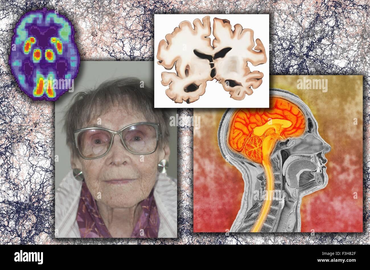 Senior woman Alzheimer's disease illustration - Stock Image