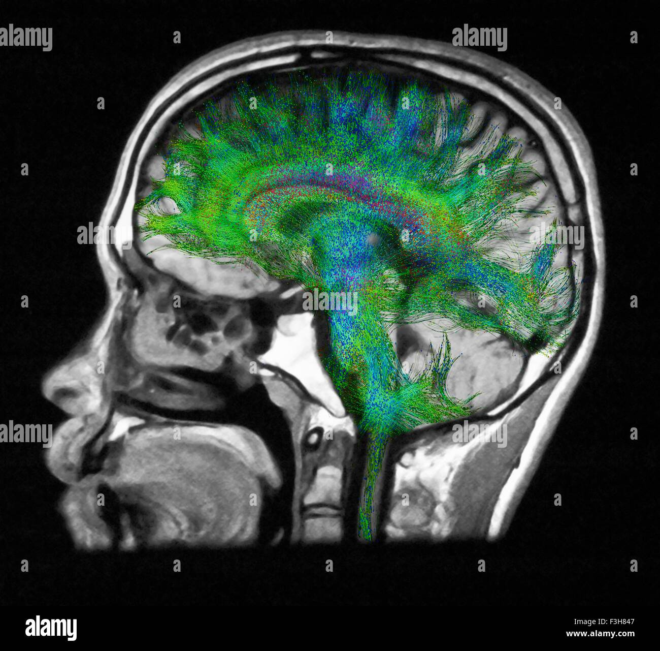 Diffusion MRI, also referred to as diffusion tensor imaging or DTI, of the human brain - Stock Image