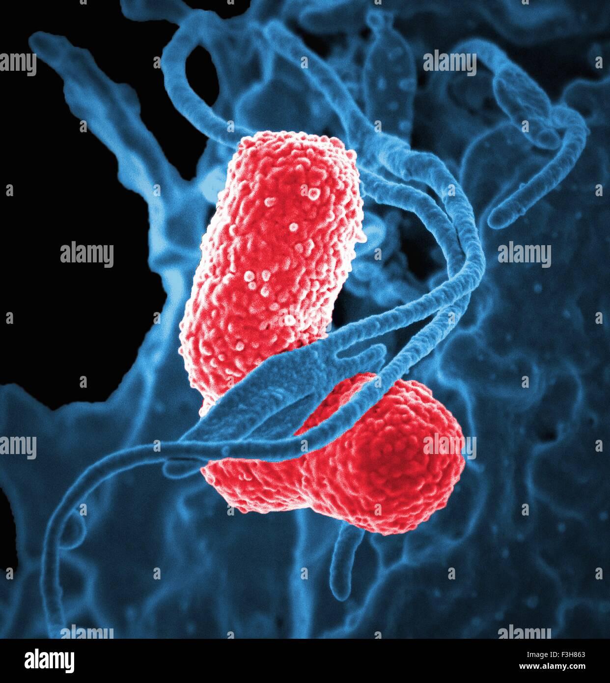 SEM white blood cell Klebsiella bacteria - Stock Image