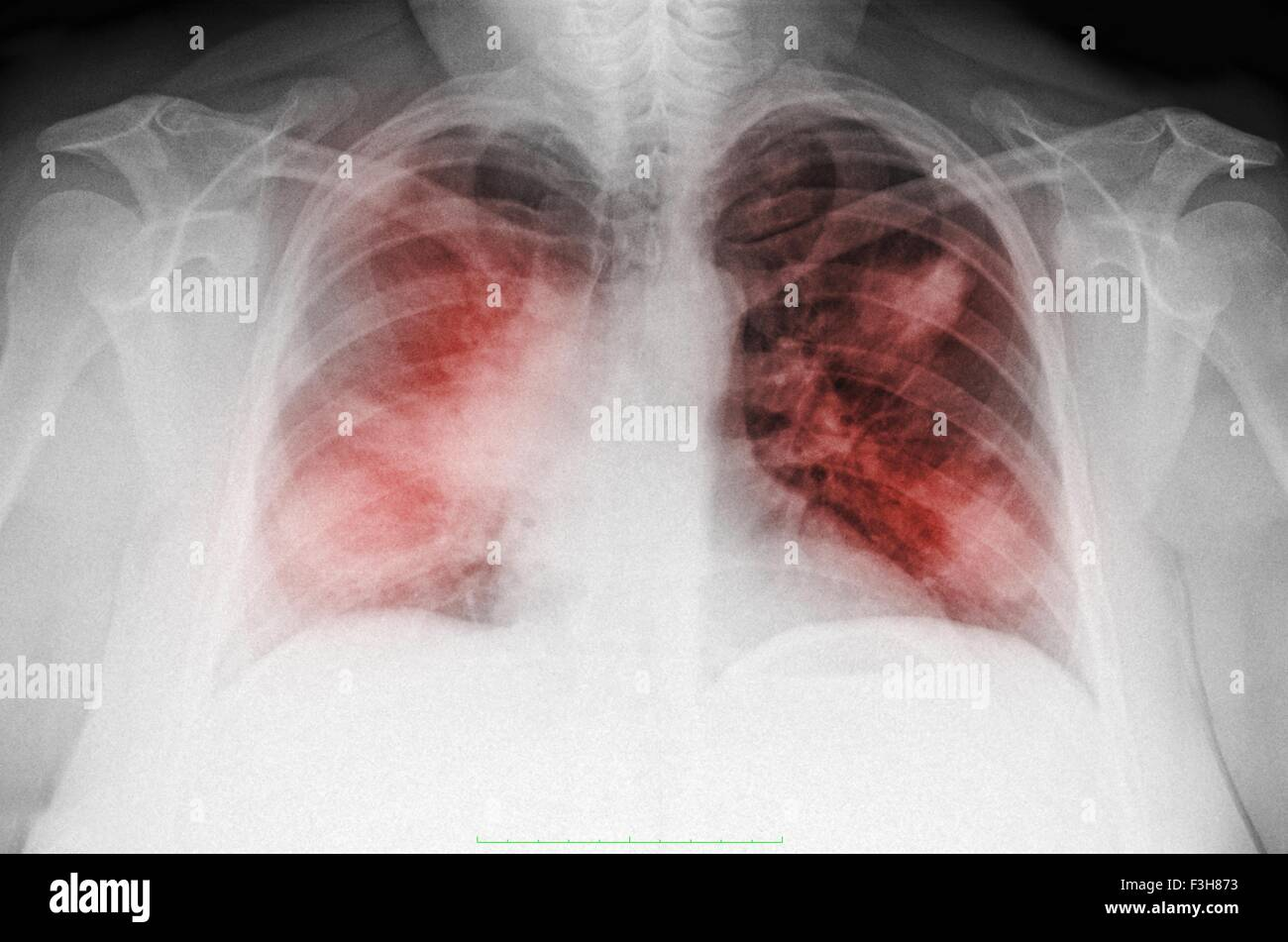 Chest x-ray of a 44 year old woman smoker, PA view, showing diffuse interstitial infiltrates suggestive of an atypical - Stock Image