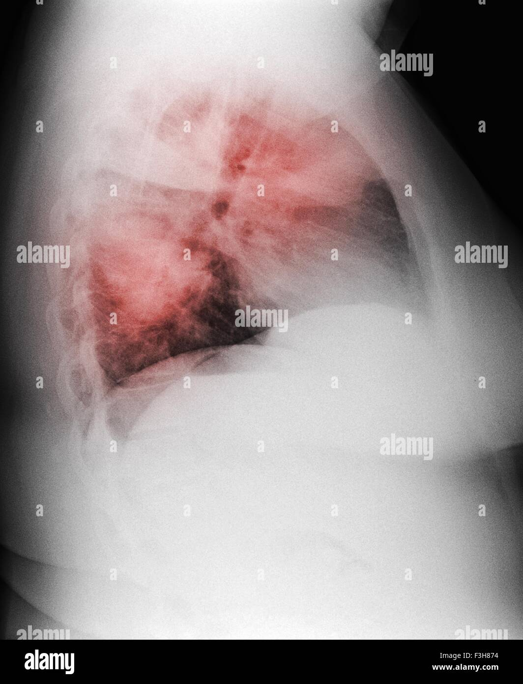 Chest x-ray of a 44 year old woman smoker, showing diffuse interstitial infiltrates suggestive of an atypical pneumonia - Stock Image