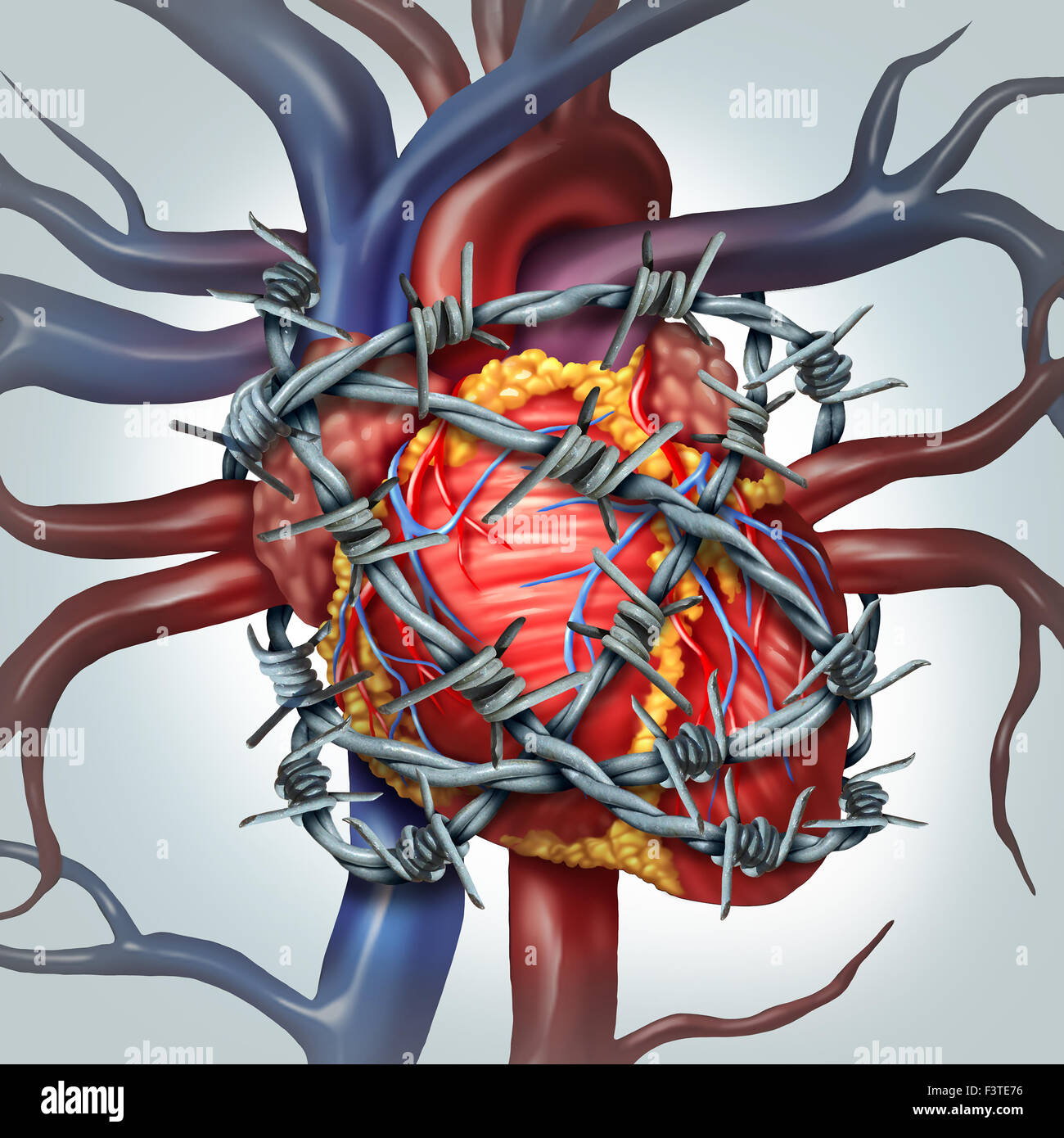 Heart pain medical health care concept as a human cardiovascular organ wrapped in sharp barbed wire as a metaphor - Stock Image