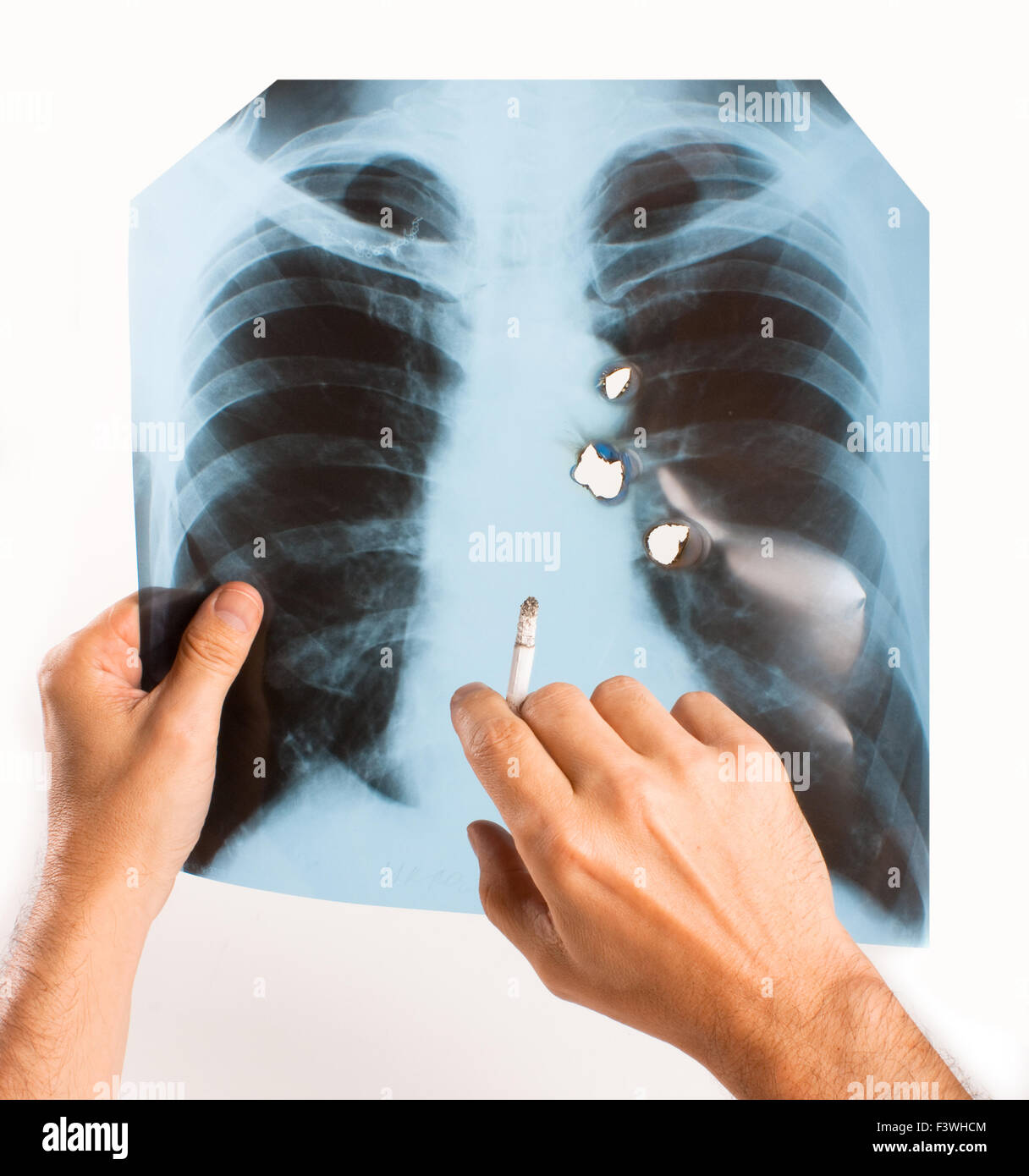 X-ray lung - Stock Image