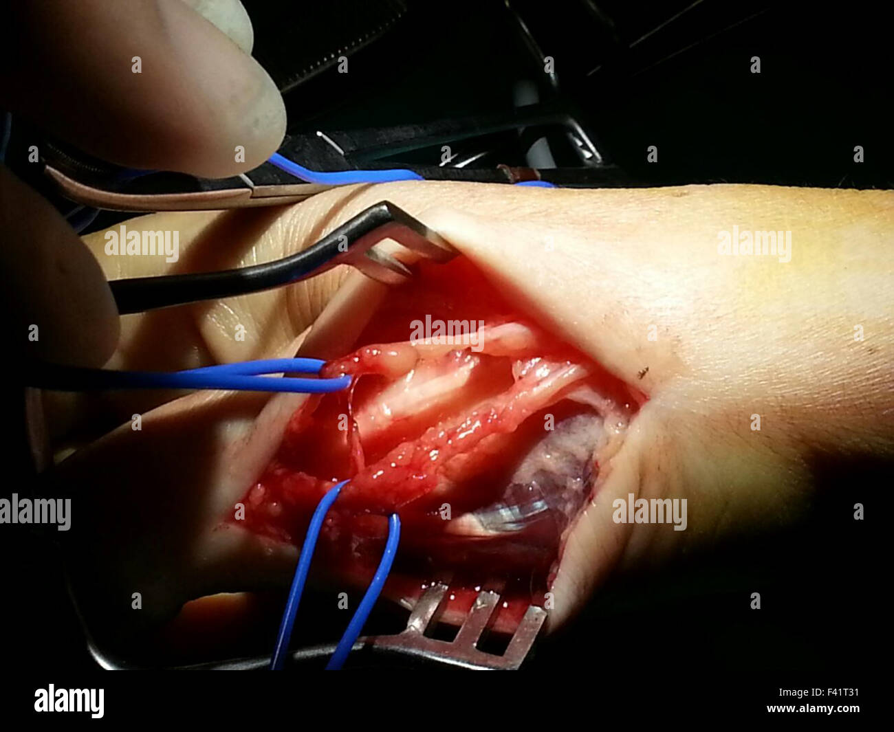cyst of sensitive branch of radial nerve - Stock Image