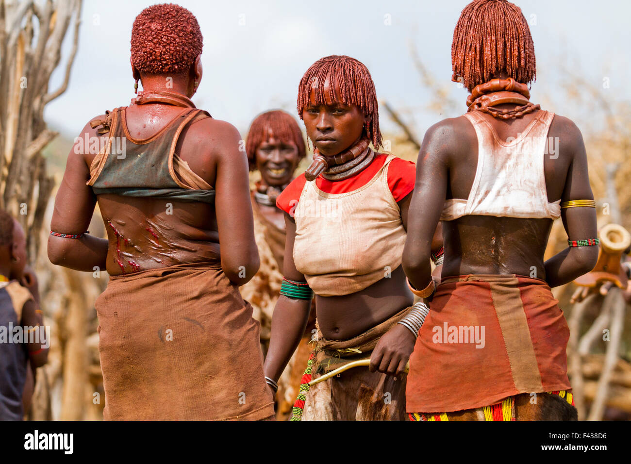 The raw scars on a Hamar woman's back after being whipped at a 'Jumping of the Bull' ceremony. Omo Valley Ethiopia Stock Photo