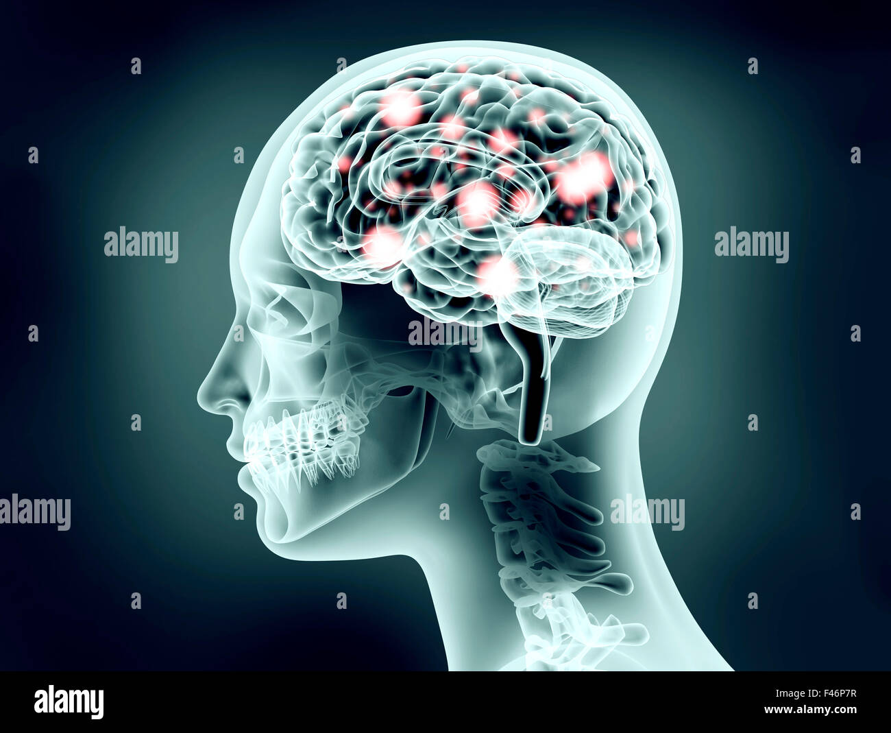 x-ray image of human head with brain and electric pulses - Stock Image