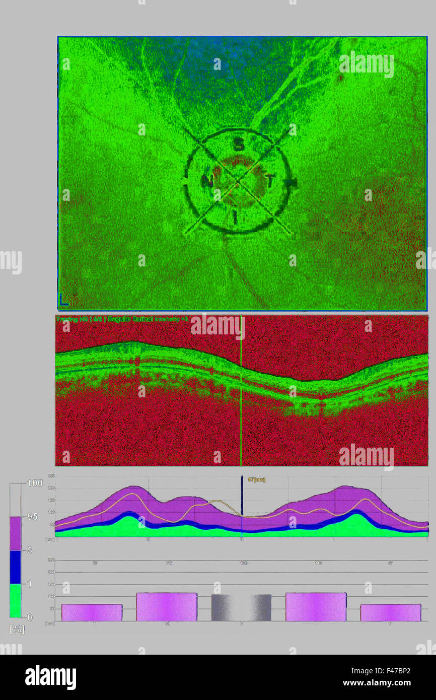 OPTICAL COHERENCE TOMOGRAPHY - Stock Image