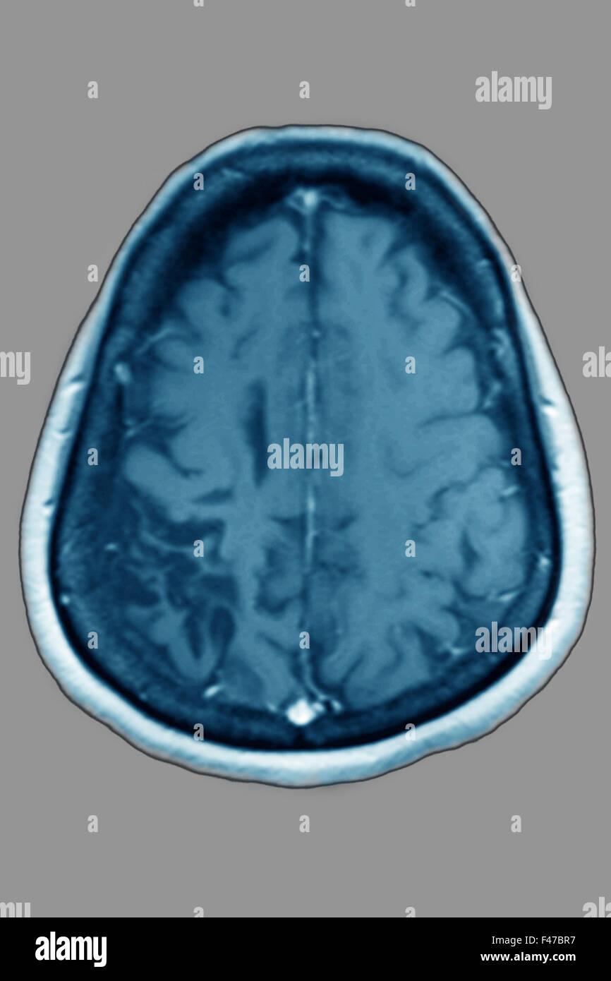 CEREBRAL ATROPHY, MRI - Stock Image