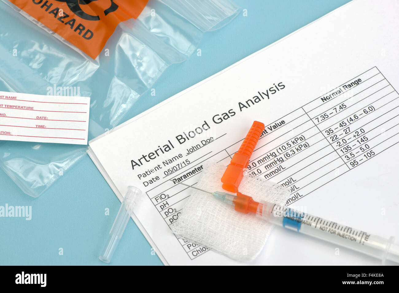 Arterial blood gas sample syringe on sterile drape with laboratory report.  Heparin is a common non-trademarked - Stock Image