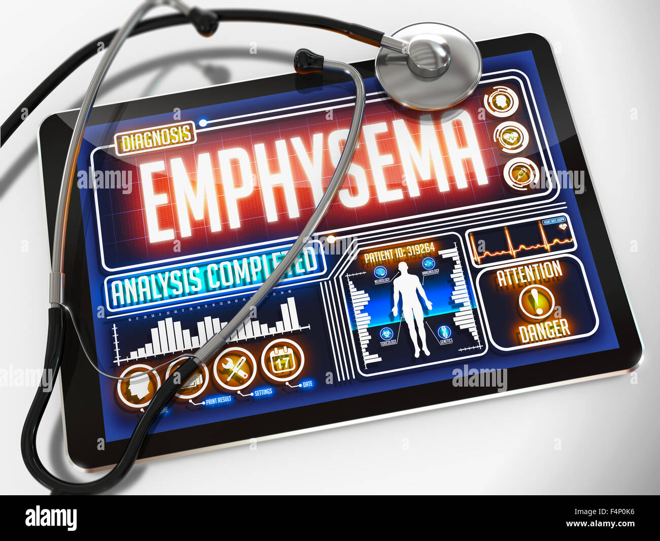 Emphysema - Diagnosis on the Display of Medical Tablet and a Black Stethoscope on White Background. - Stock Image