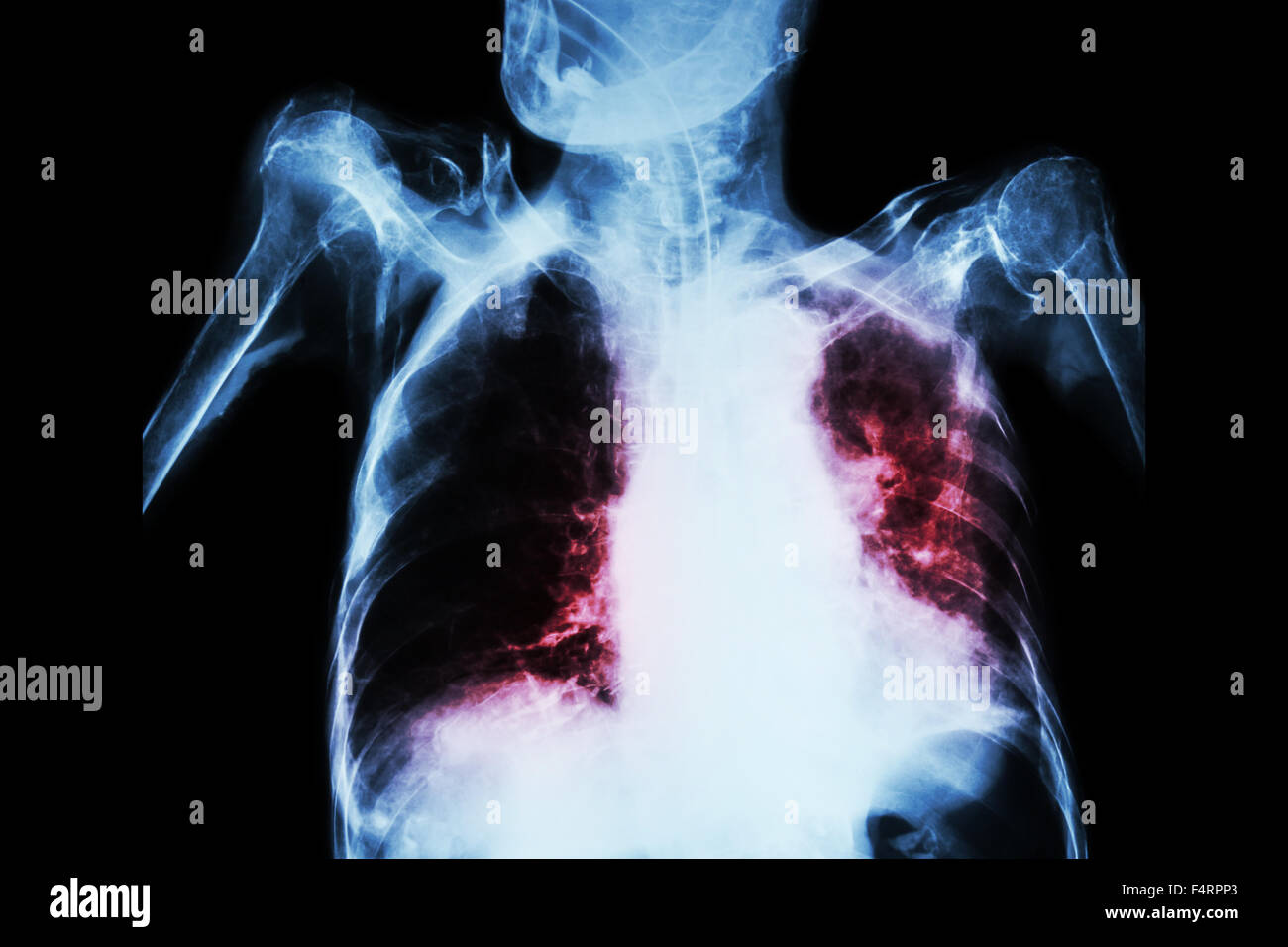 Pulmonary Tuberculosis with acute respiratory failure ( Film chest x-ray of old patient show alveolar and interstitial Stock Photo