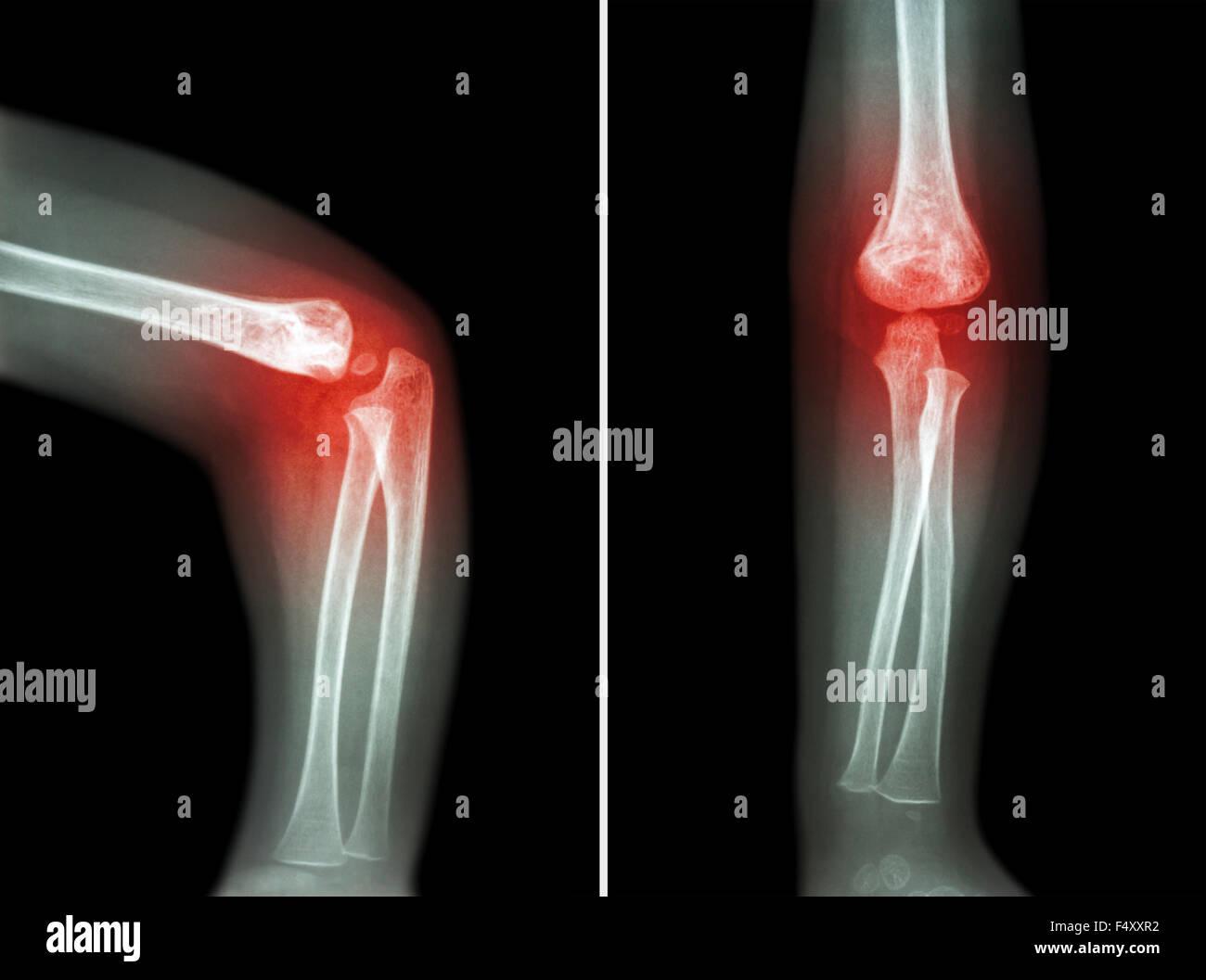 Elbow X Ray Stock Photos & Elbow X Ray Stock Images - Alamy