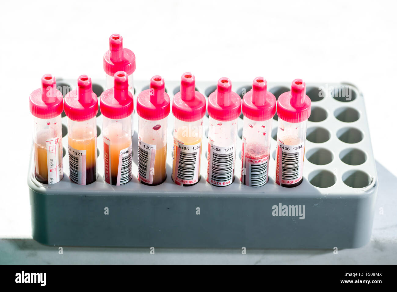 Many capillary tubes, filled with blood for diagnose the blood type, are sorted in a grey rack - Stock Image
