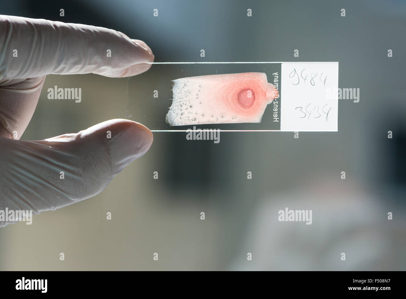 Blood is smeared on a glass slide for diagnosis, held against the light by a laboratory assistent hand - Stock Image