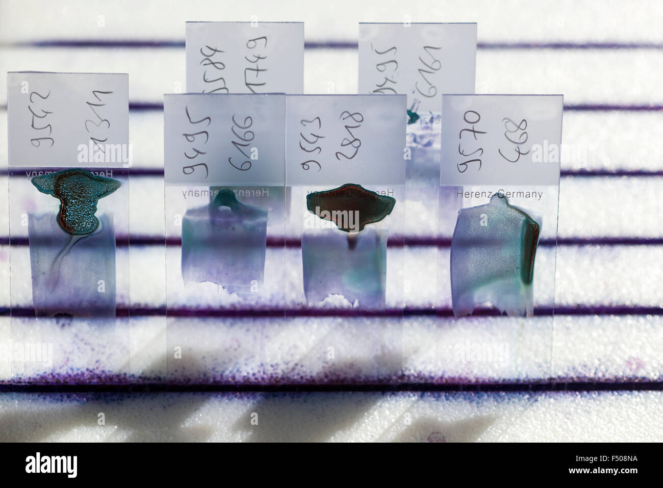 Blood is smeared on glass slides for diagnosis of the blood count, the haemogram - Stock Image