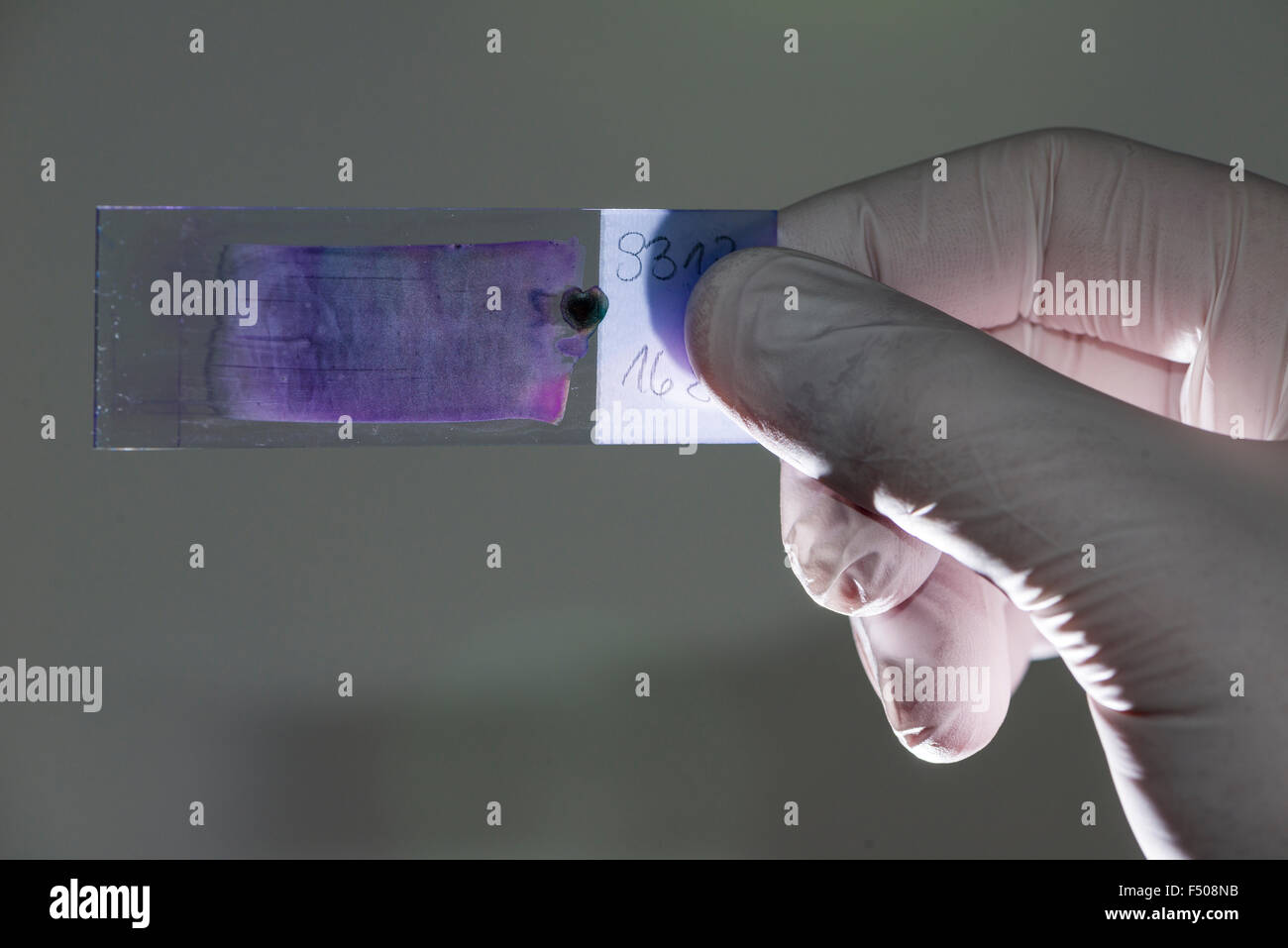 Blood is smeared on a glass slide for diagnosis of the blood count, the haemogram, held against the light by a laboratory - Stock Photo