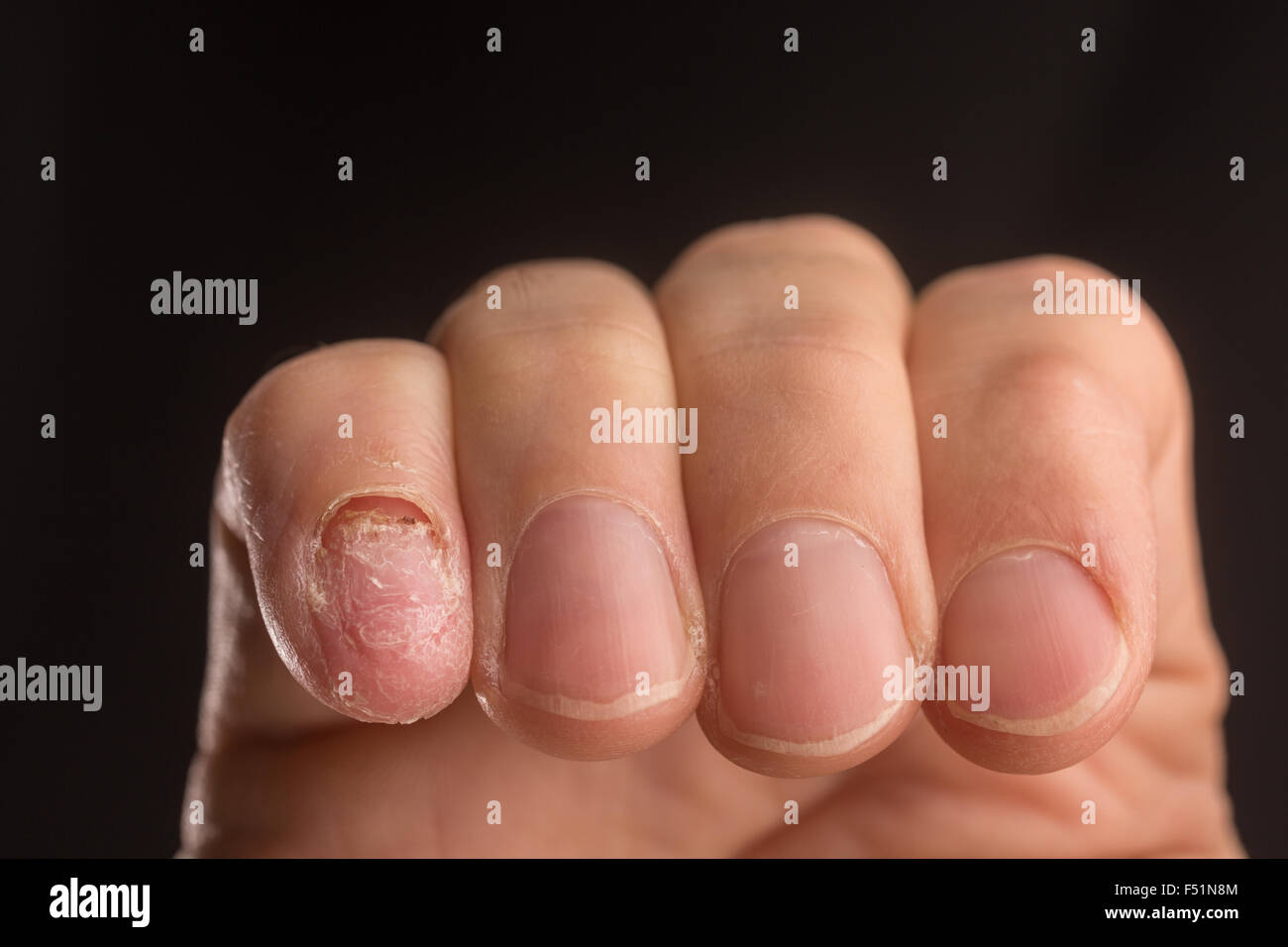 An adult male hand with a missing fingernail - Stock Image