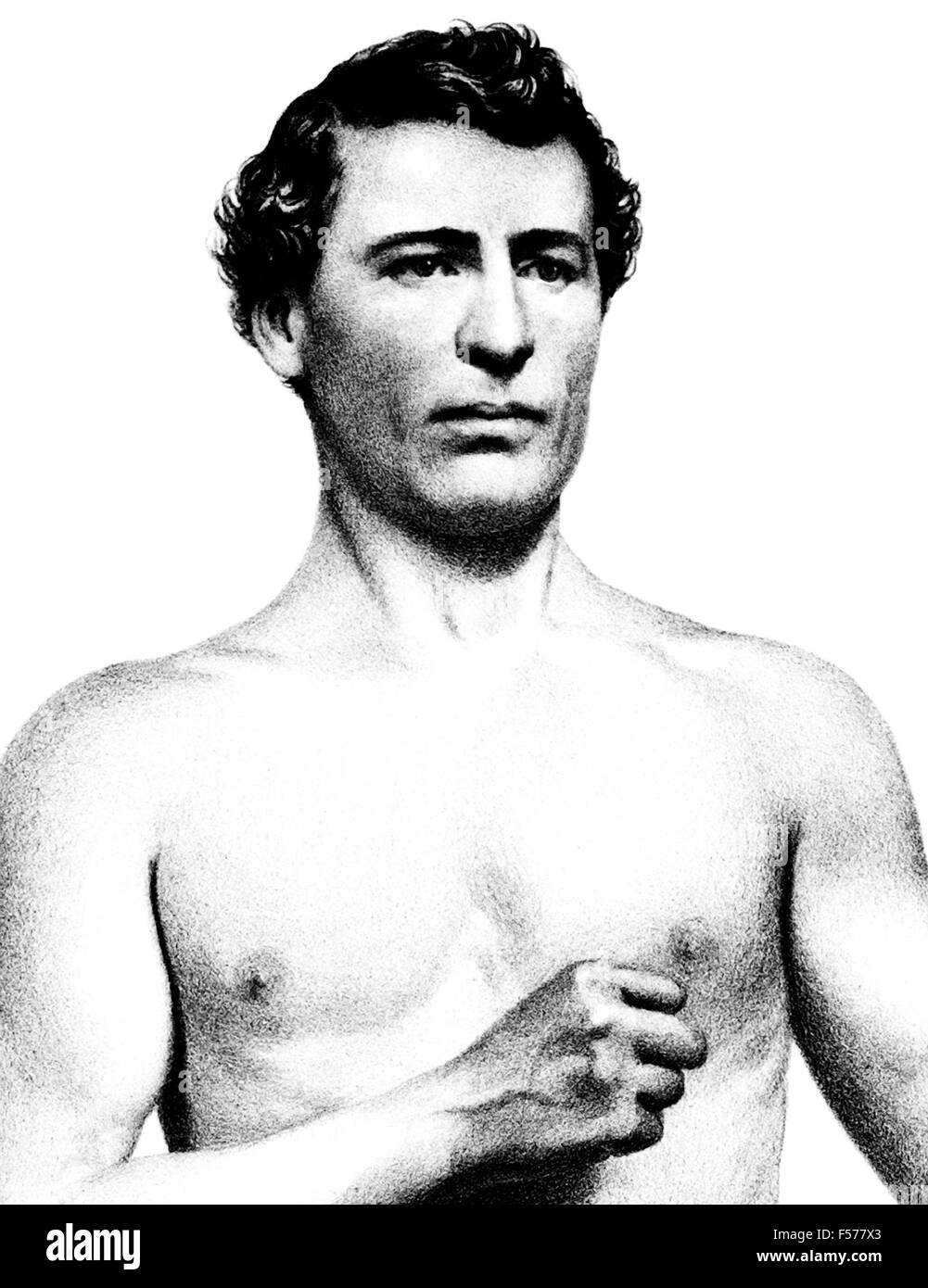 Vintage portrait of American bare-knuckle boxer John C Heenan (1834 - 1873). Heenan, born in New York and nicknamed - Stock Image