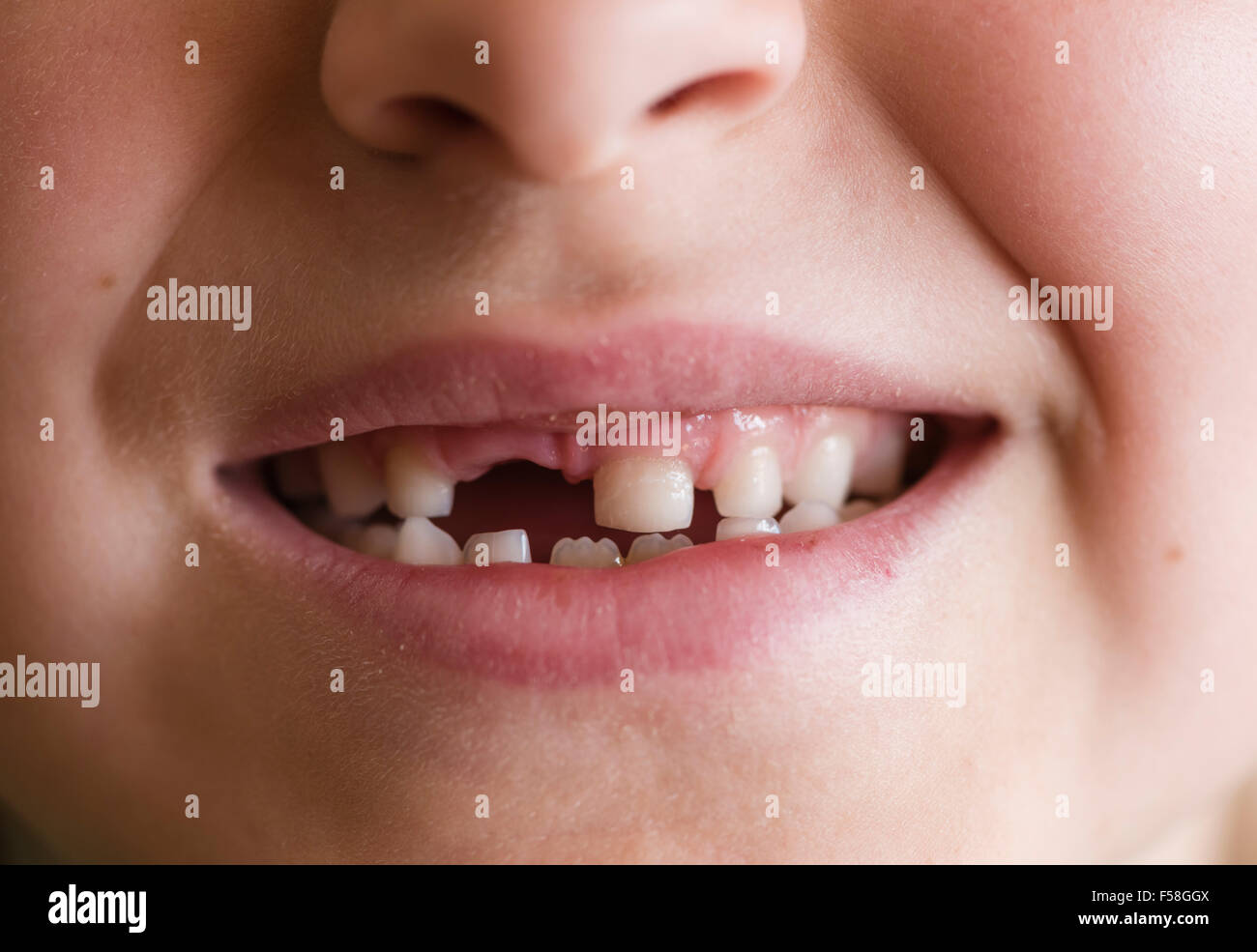 Gap-toothed primary dentition of a 7-year old boy - Stock Image