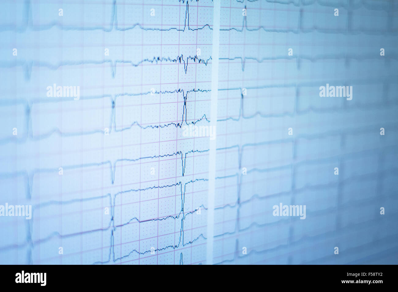 Sports performance professional fitness, power, endurance and strength evaluation test with gas analysis and echocardiogram - Stock Image