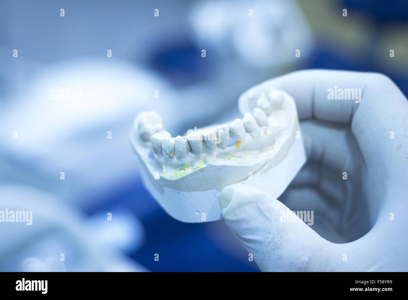 Dental mold dentist clay teeth plate ceramic cast model showing