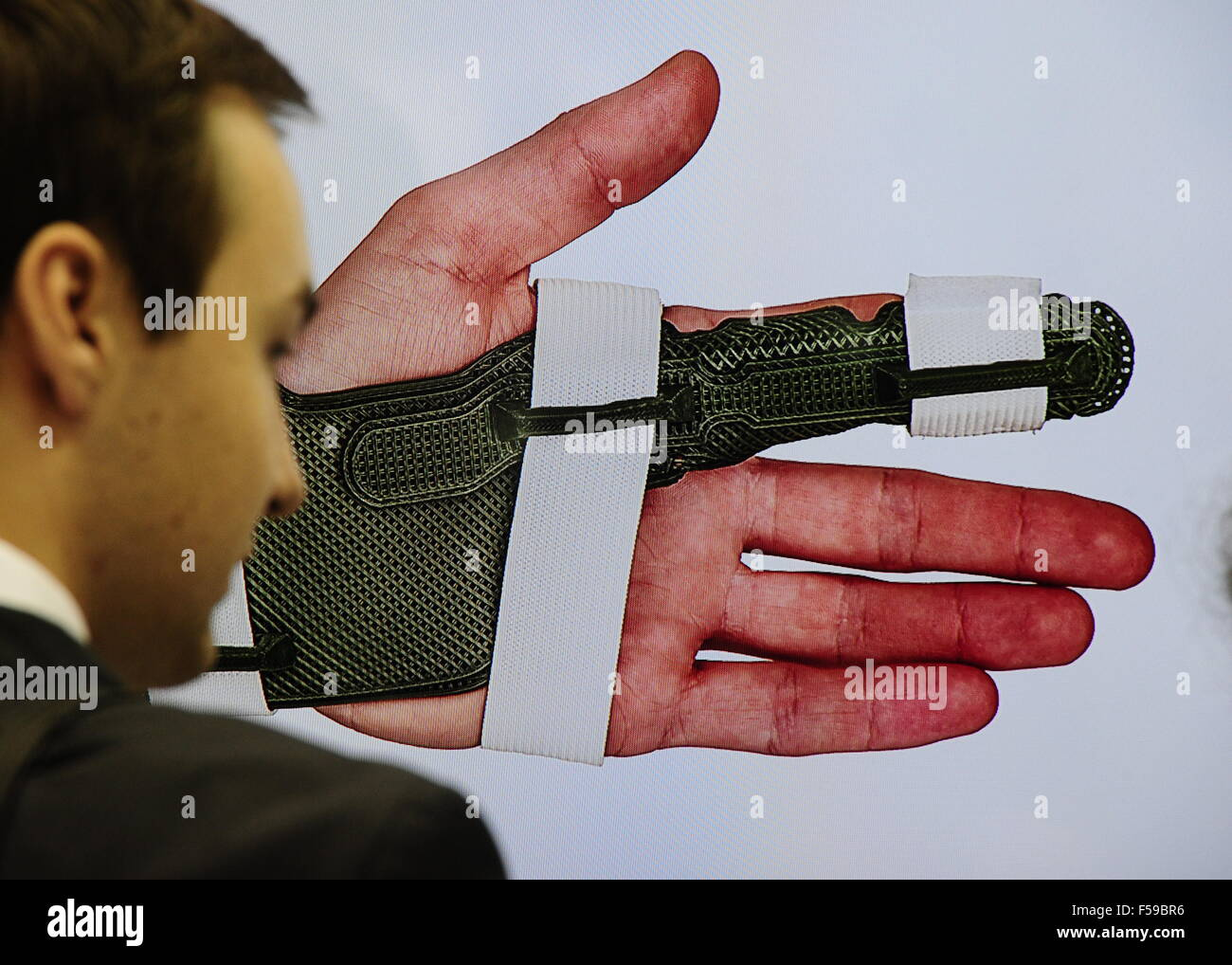 Moscow, Russia. 30th Oct, 2015. A picture of a hand orthosis on display at the Fasie stand at the 2015 Open Innovations - Stock Image