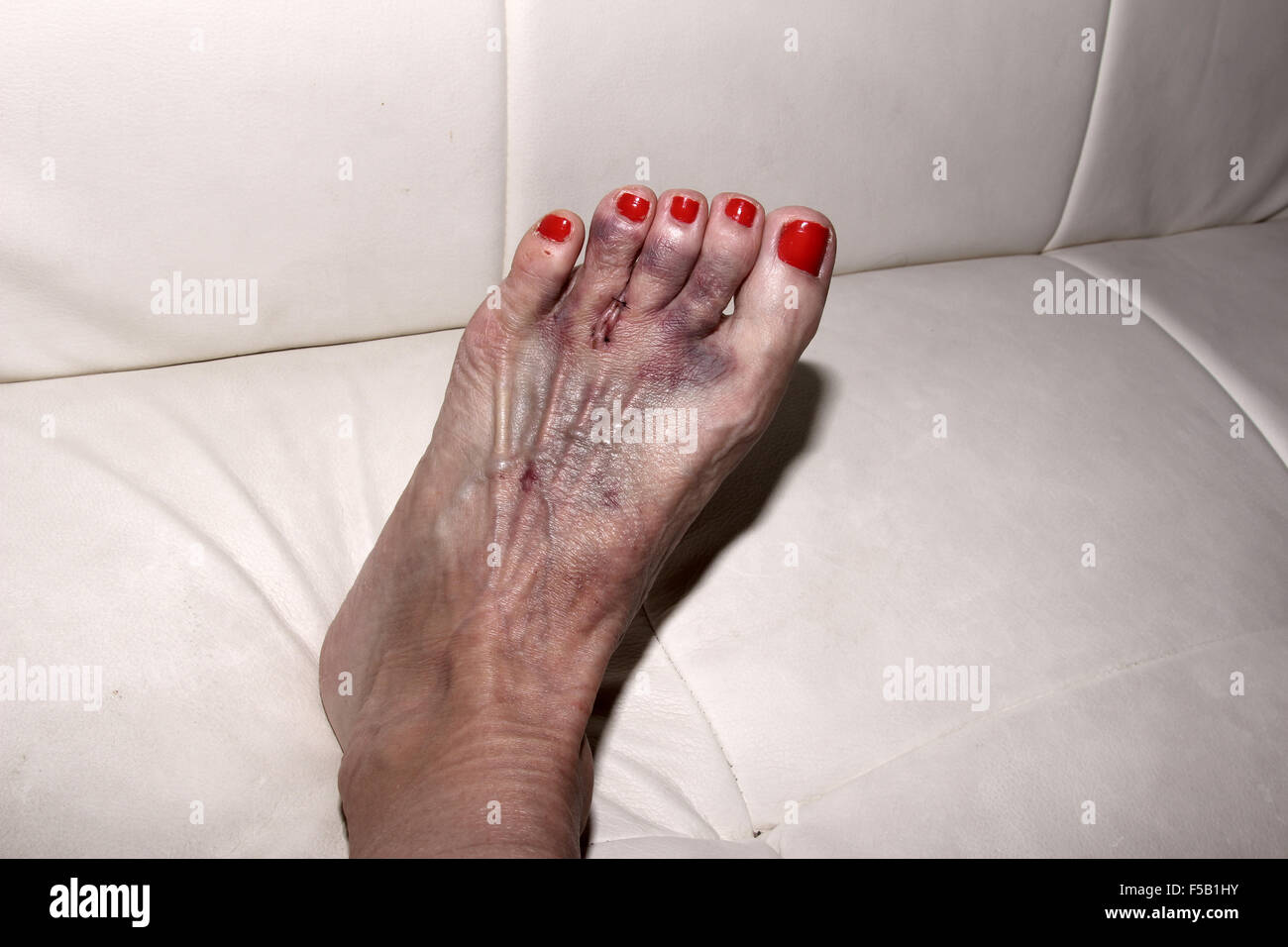 foot after morton s neuroma surgery between the second and third toe stock photo 89367879 alamy. Black Bedroom Furniture Sets. Home Design Ideas