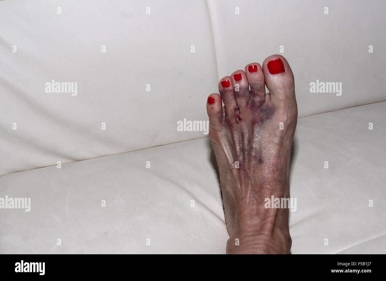 foot after morton s neuroma surgery between the second and third toe stock photo 89367887 alamy. Black Bedroom Furniture Sets. Home Design Ideas