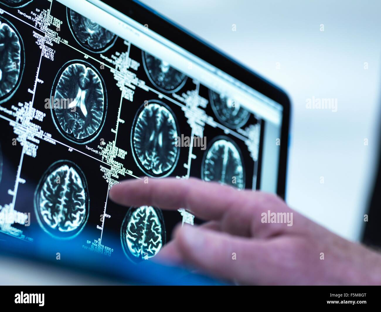 Doctor viewing a series of MRI (Magnetic Resonance Imaging) brain scans on a screen - Stock Image