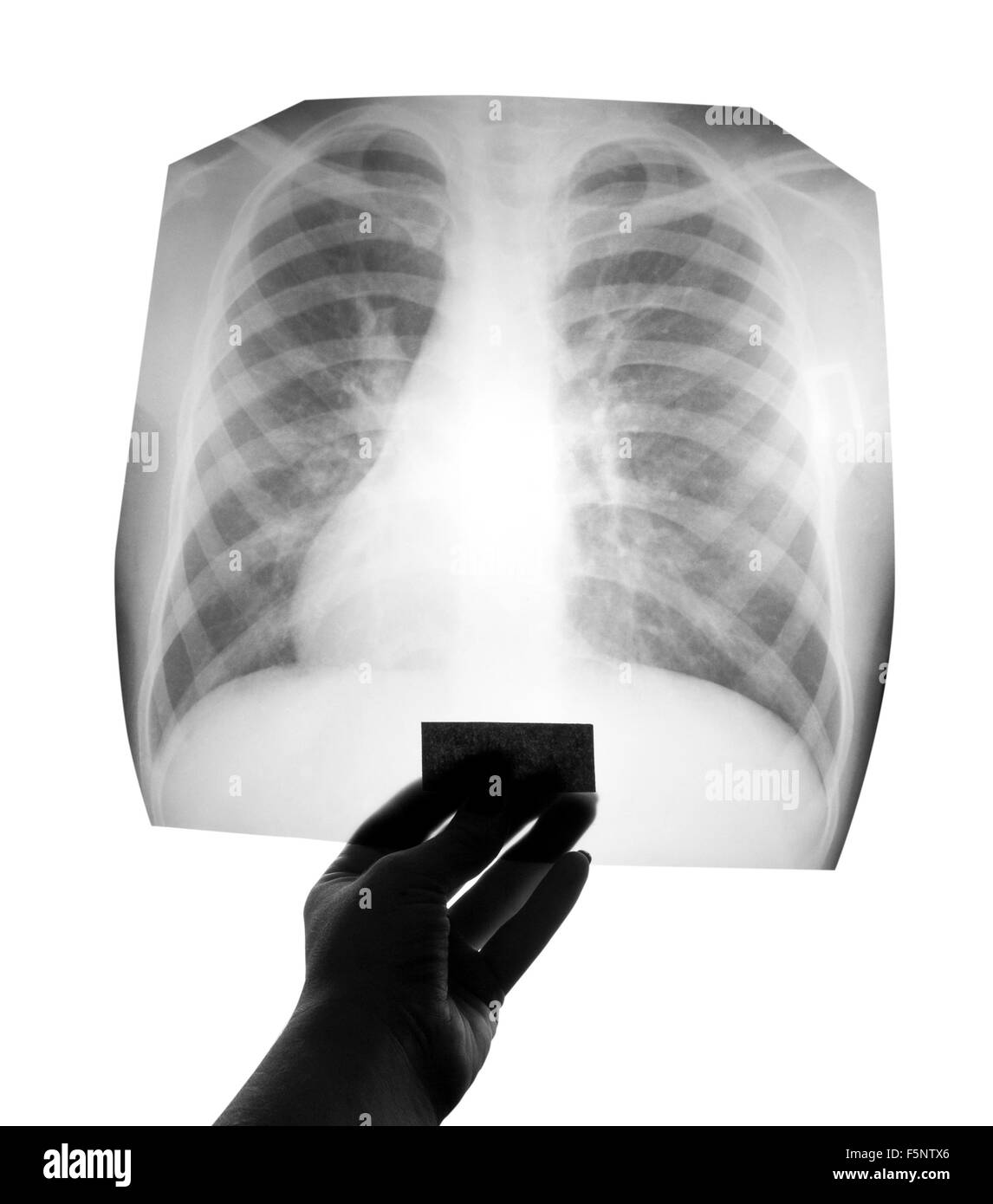 Chest X-ray image in hand - Stock Image