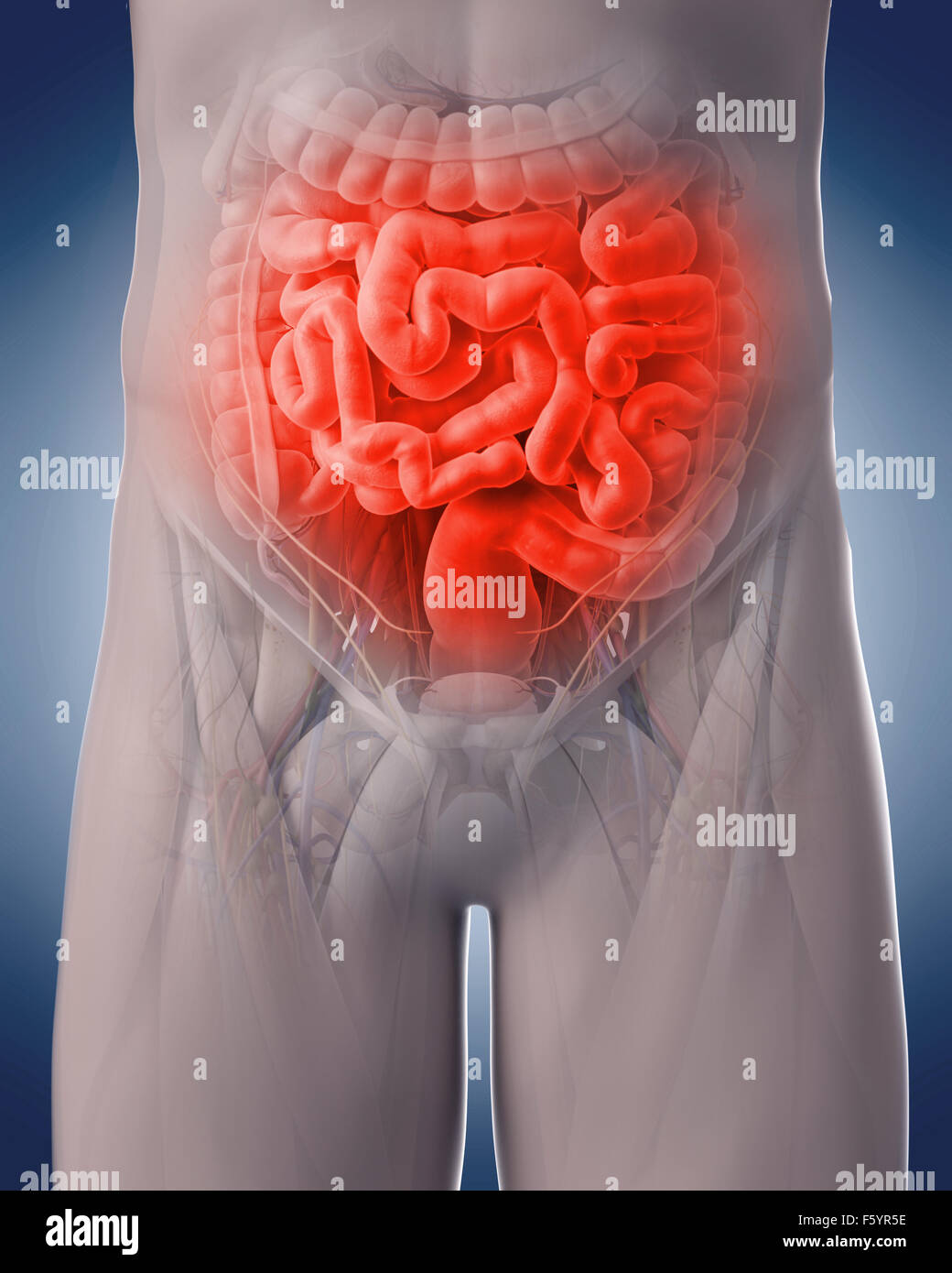 medical 3d illustration of a painful intestine - Stock Image