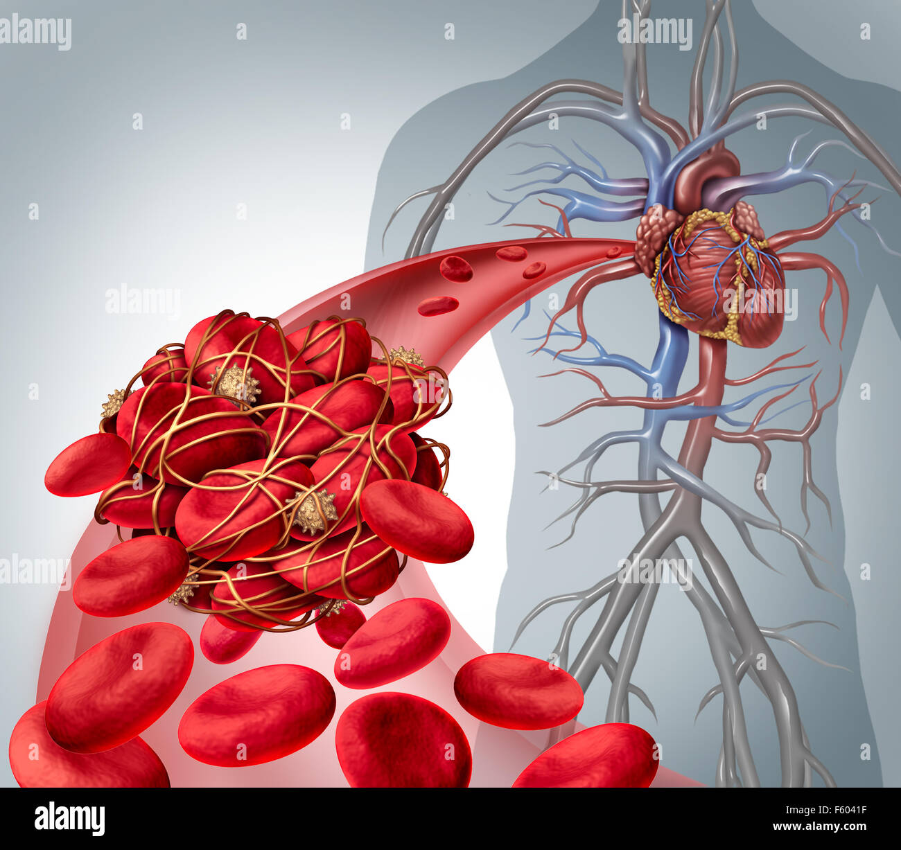Blood clot risk and clot or thrombosis medical illustration symbol as a group of human blood cells clumped together - Stock Image