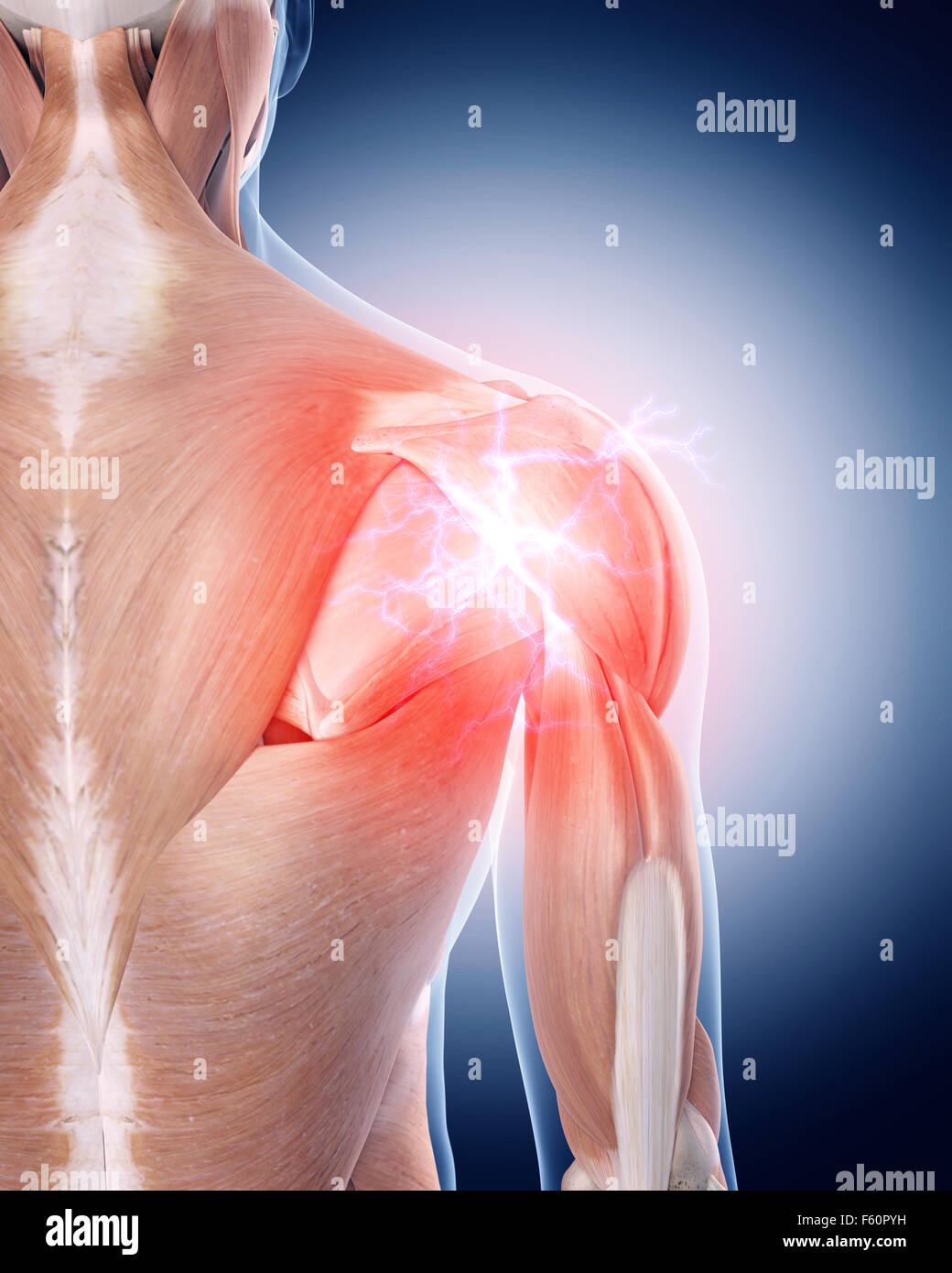 medical 3d illustration of a painful shoulder Stock Photo: 89757797 ...